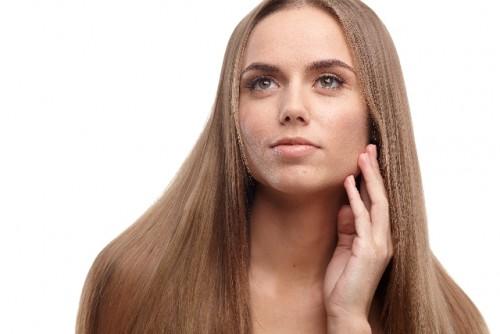 皮膚科の化粧水でシミが薄くなった