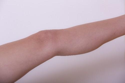 血行を良くし、シミやシワ肌のくすみが取れるツボ「三里」