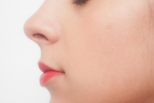 口の周りに出来るニキビは、栄養不足の可能性