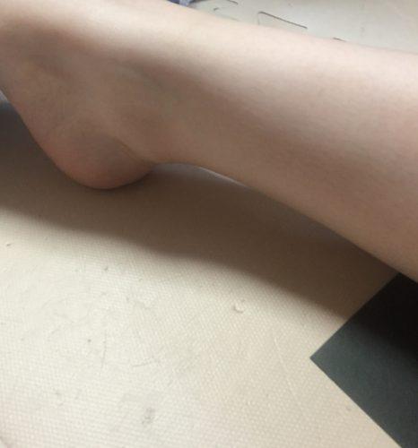 角質ケアのあとは足を徹底的に保湿