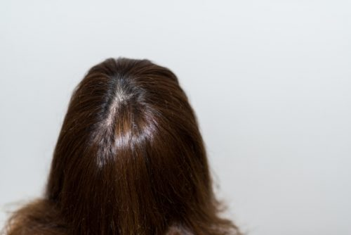 冷え性になりやすい体質は薄毛を招く?